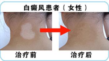 颈部白癜风康复病例