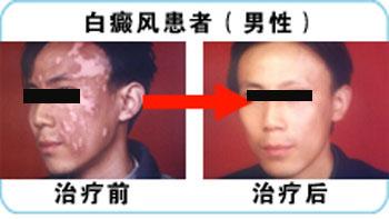面部白癜风治疗康复病例