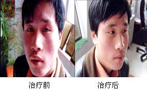 郑州肤康皮肤病研究所皮炎康复对比图