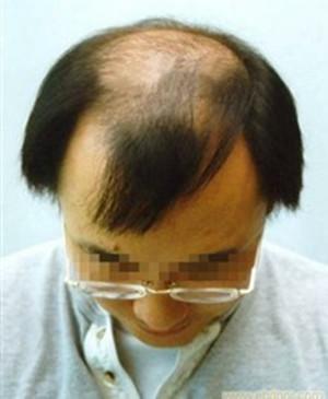 脂溢性脱发有哪些症状
