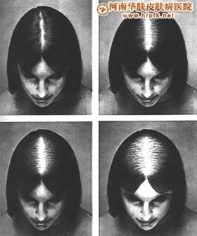 30岁左右的女性脱发患者的原因来自于哪里