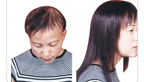 女性更年期脱发